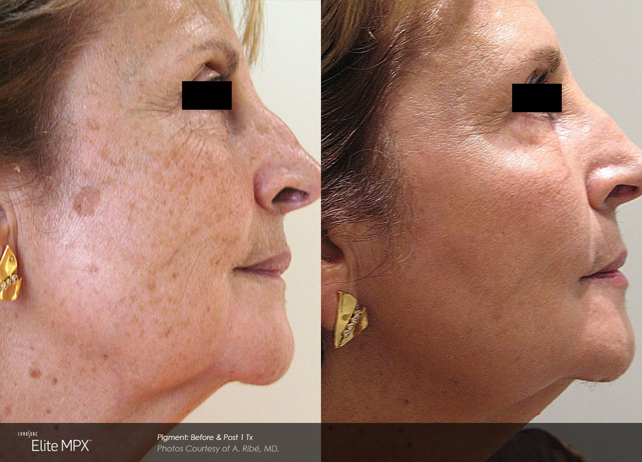 Ipl rejuvenation before and after | Vancouver BC | Pender