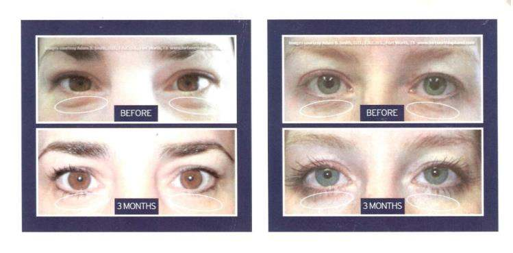 Before and after photo of eyes receiving Selphyl treatment | Pender Medi Spa Vancouver