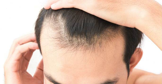 PRP Therapy for Hair Loss at Pender Medi Spa